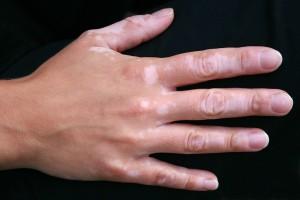 Pigmentação da pele alterada pela doença autoimune vitiligo.
